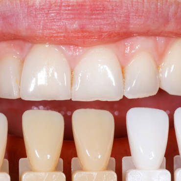 Porcelain Veneers have a ton of myths revolving around them.