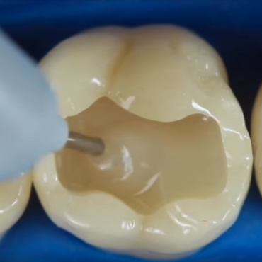 How Long Does a Dental Filling Last?