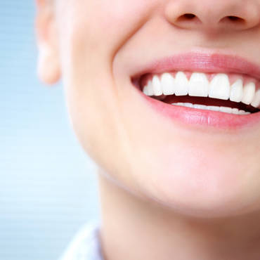All You Need to Know Before Getting Porcelain Veneers