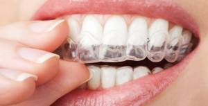 clear-retainers
