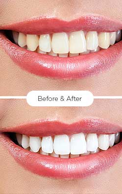 serena_teeth-whitening 3