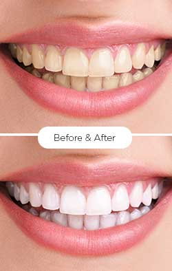 serena_teeth-whitening 2