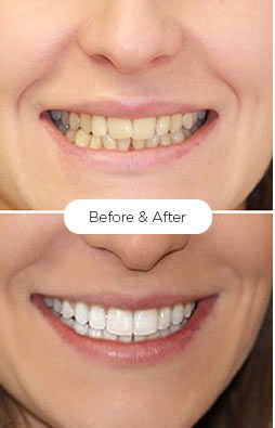serena_teeth-whitening