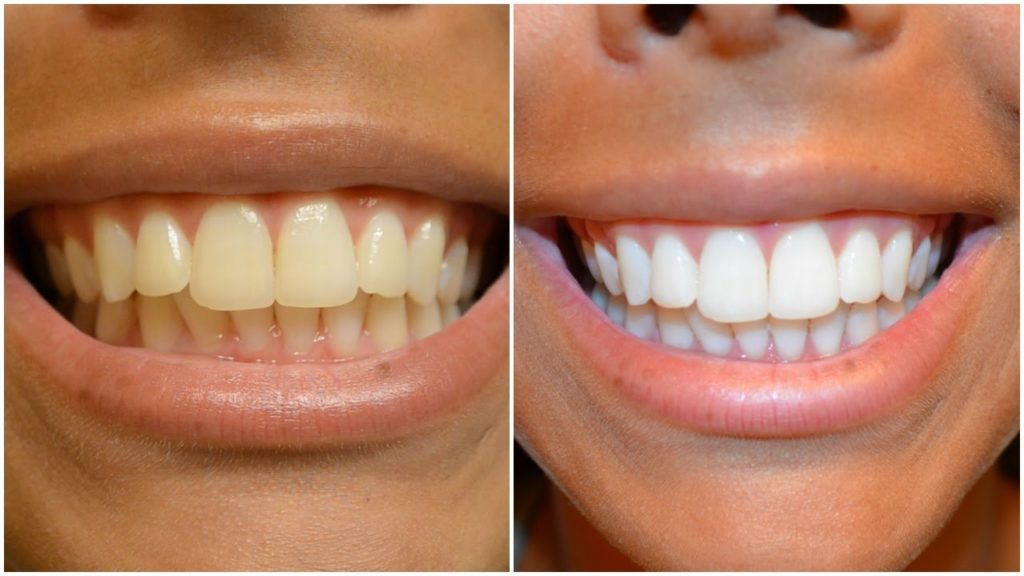 Professional Teeth Whitening San Diego