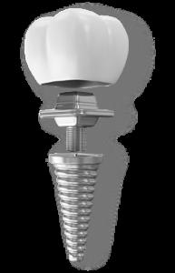 dental-implants_07