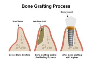 Serena Bone Graft