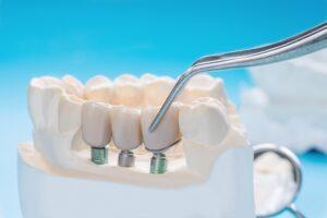 dental implants in san diego