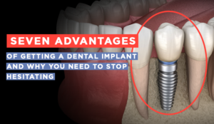 advantages of getting dental implants