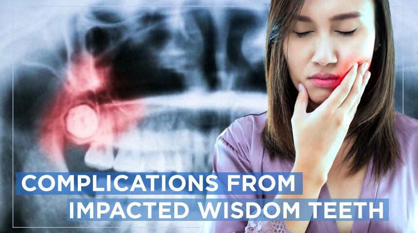 complications of impacted wisdom teeth