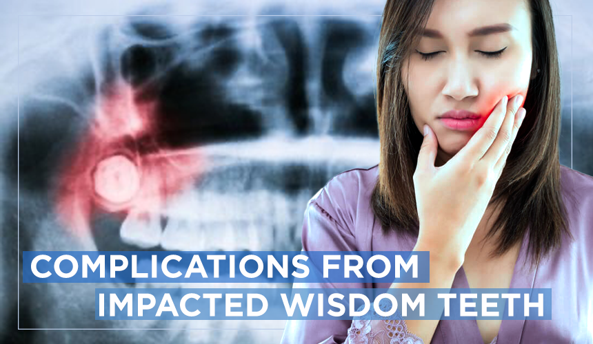 complications of impacted wisdom teeth