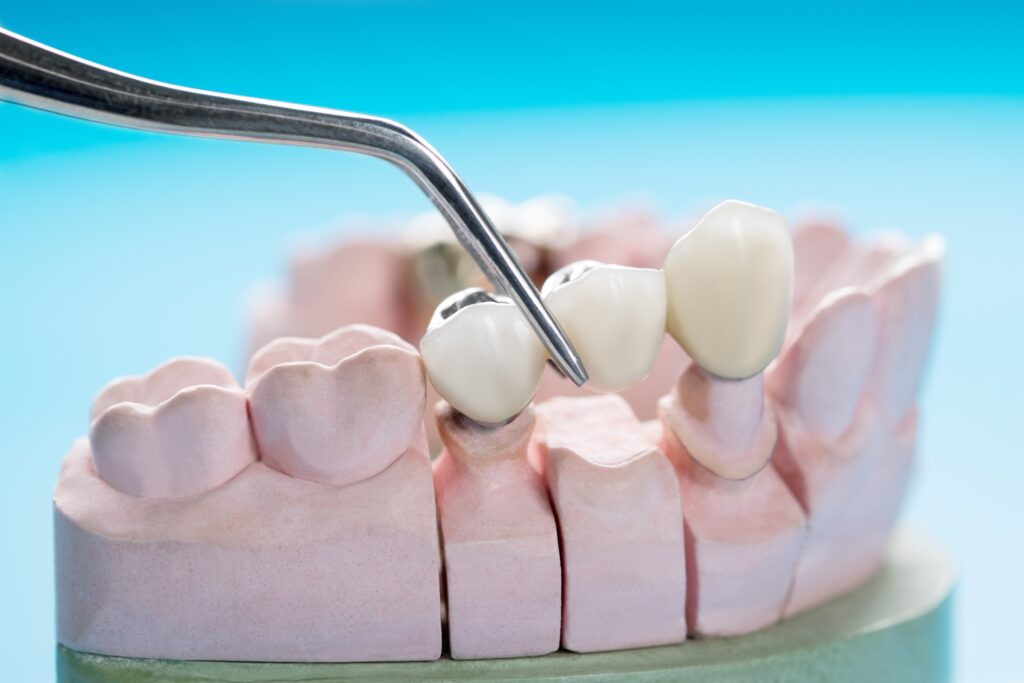dental bridges in San Diego