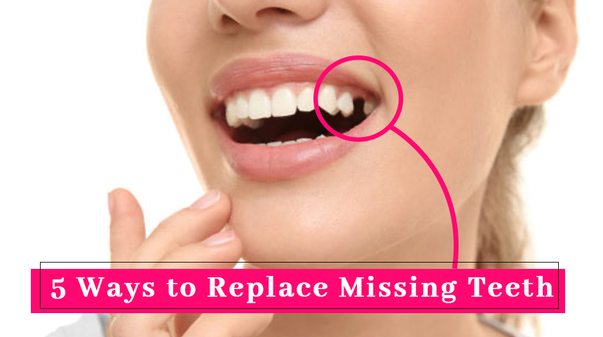5 ways to replace missing teeth