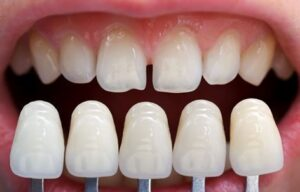 dental veneers san diego