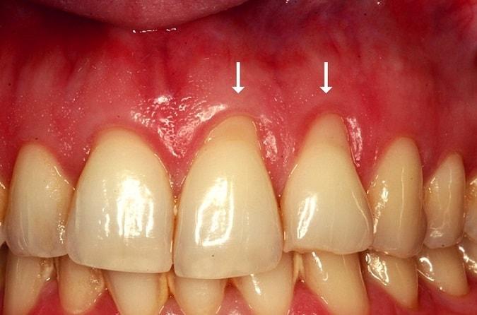san diego dentist treating gums