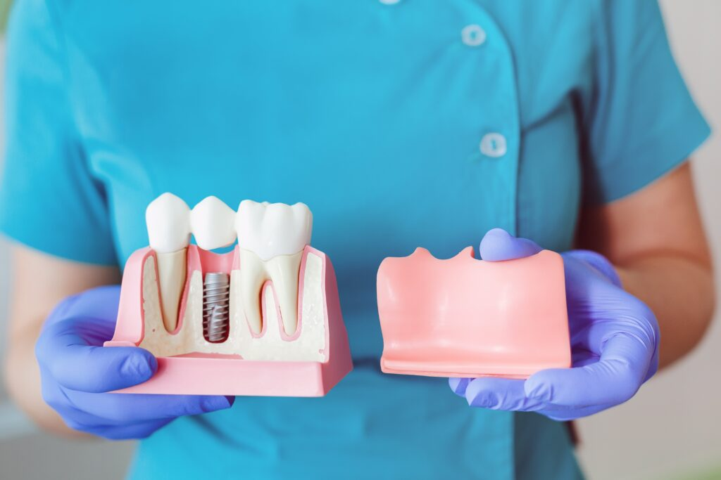 dental crowns in Clairemont
