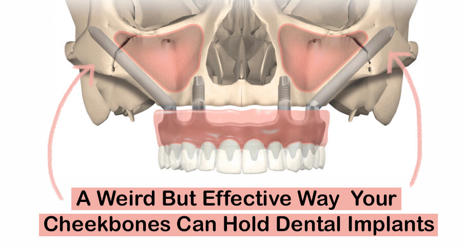 weird but effective way your cheekbones can hold dental implants