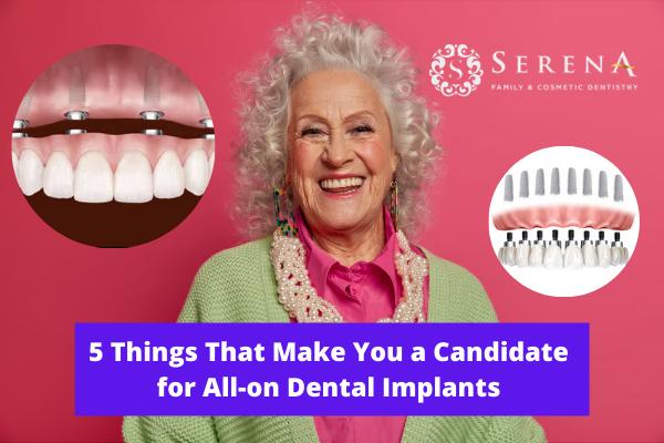 Clairemont dentist offering dental implants