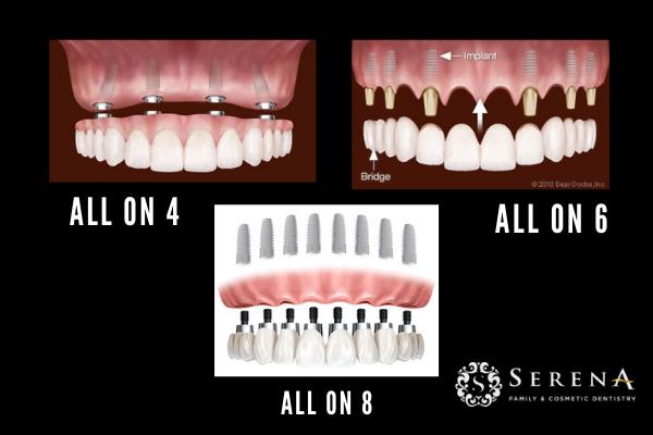 all on 4 dental implants in San Diego