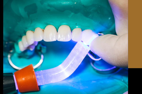 dentist in clairemont